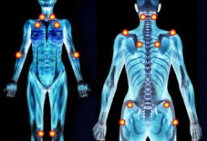 fibromyalgia-where-does-it-hurt-lupus-lyme-disease